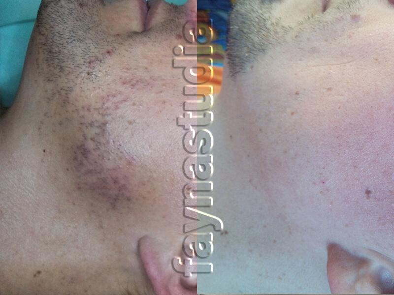 Результат лазерной эпиляции