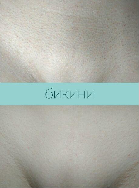 Результат лазерной эпиляции бикини Харьков