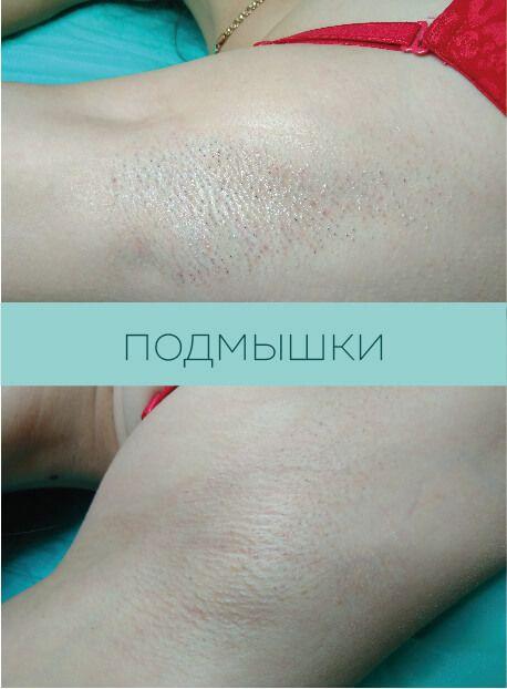 Результат лазерной эпиляции подмышек Харьков